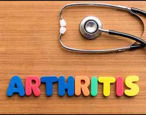 How-ro-manage-arthritis